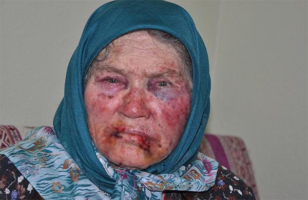 1 2693 - Yaşlı Kadının Dövülüp Gasp Edilmesiyle İlgili Torunu ve Arkadaşı Gözaltına alınmıştı