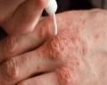 Soğuk alerjisine dikkat