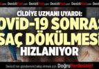 CİLDİYE UZMANI UYARDI: COVİD-19 SONRASI SAÇ DÖKÜLMESİ HIZLANIYOR