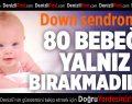 Down sendromlu bebekleri yalnız bırakmadılar