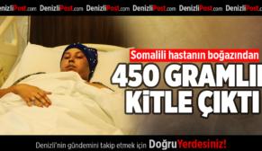 Somalili hastanın boğazından 450 gramlık kitle çıkarıldı
