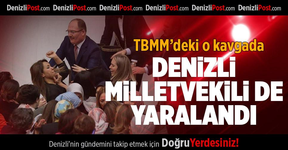 TBMM'deki Kavgada CHP'li Basmacı da Yaralandı