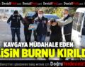 DENİZLİ'DE KAVGAYA MÜDAHALE EDEN POLİS MEMURUNUN BURNU KIRILDI
